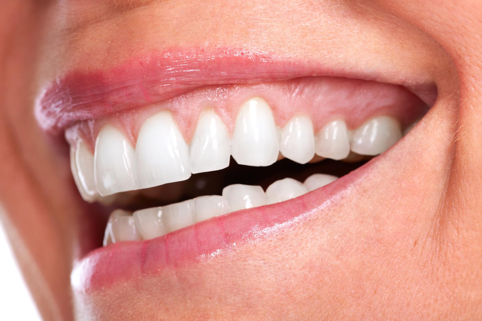 miniatura zdrowy uśmiech