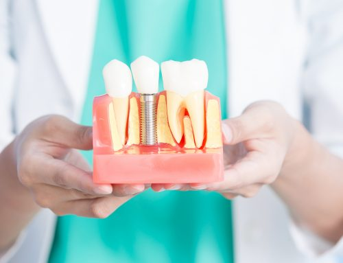 Producenci implantów zębowych