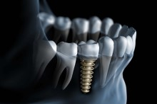 miniatura implant zęba