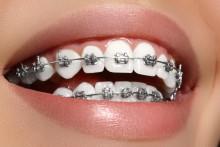 miniatura ortodoncja aparat na zęby